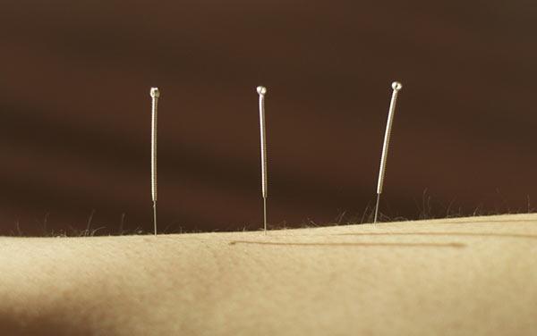 tan-acupunctuur